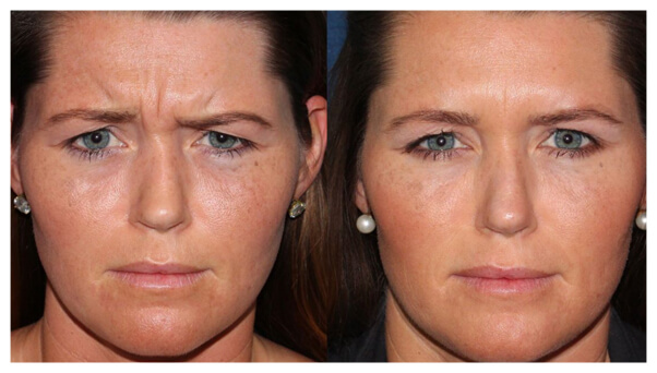 Actual un-retouched patient before and after Botox injections to treat glabellar lines by Dr. Fabi. Disclaimer: Results may vary from patient to patient. Results are not guaranteed.