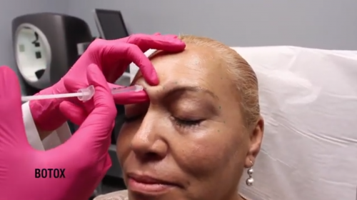 forehead wrinkle injections botox sd