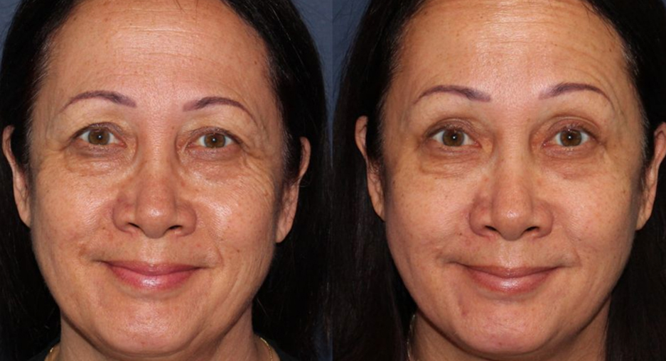 Actual un-retouched patient before and after Botox injections to treat crow's feet by Dr. Butterwick. Disclaimer: Results may vary from patient to patient. Results are not guaranteed.
