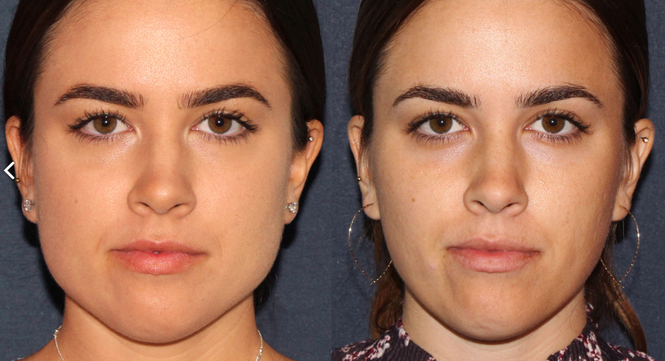 Actual un-retouched patient before and after Botox injections to reduce the masseter muscle and slim the face by Dr. Groff. Disclaimer: Results may vary from patient to patient. Results are not guaranteed.