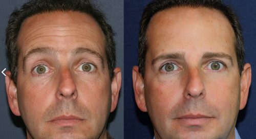 Before and after front image of Botox treatment on a male's forehead lines performed by Dr. Groff at our San Diego medi spa