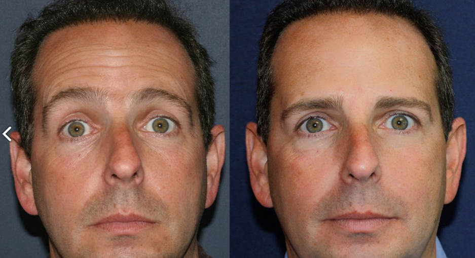 Actual un-retouched patient before and after Botox injections to reduce forehead injections by Dr. Groff. Disclaimer: Results may vary from patient to patient. Results are not guaranteed.