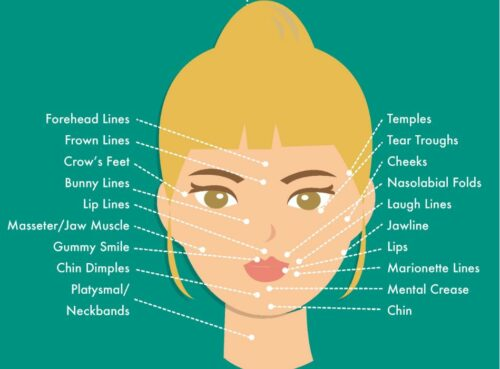 botox injection locations forehead lines, frown lines, crow's feet, bunny lines, lip lines, masseter muscle, gummy smile, chin dimple, platysmal / neckbands, temples, tear troughs, cheeks, nasolabial folds, laugh lines, jawline, lips, marionette lines, mental crease, chin