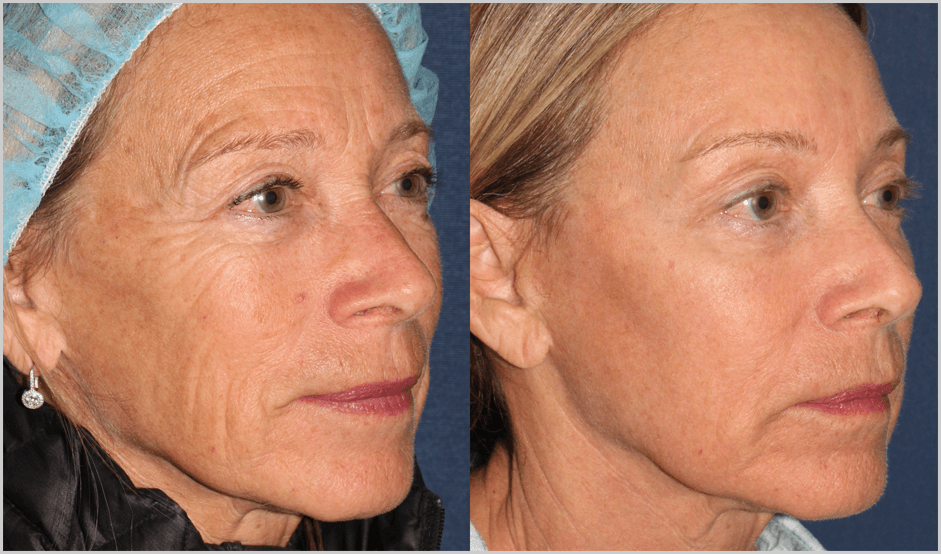 Actual un-retouched patient before and after Fraxel Repair to reduce wrinkles and rejuvenate the skin by Dr. Fabi. Disclaimer: Results may vary from patient to patient. Results are not guaranteed.