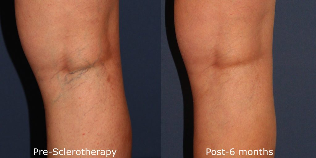 Sclerotherapy Vein Removal By San Diego Dermatologists