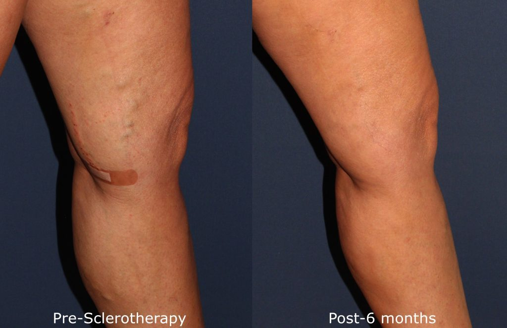 Actual un-retouched patient before and after sclerotherapy injections to treat spider veins on the leg by Dr. Goldman. Disclaimer: Results may vary from patient to patient. Results are not guaranteed.