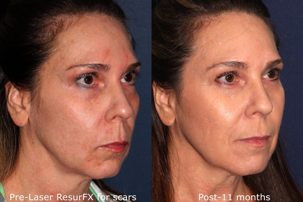 Actual un-retouched patient before and after ResurFX laser to treat acne scars by Dr. Goldman. Disclaimer: Results may vary from patient to patient. Results are not guaranteed.