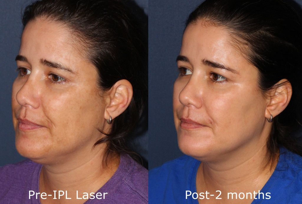 Actual un-retouched patient before and after IPL photofacial to treat hyperpigmentation and sun damage by Dr. Goldman. Disclaimer: Results may vary from patient to patient. Results are not guaranteed.