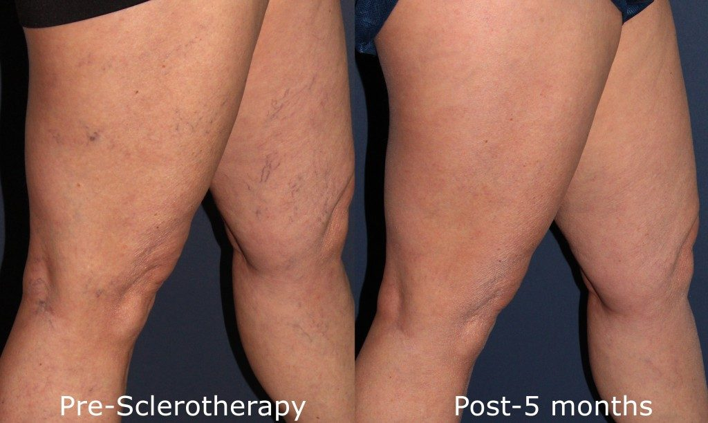 Actual un-retouched patient before and after sclerotherapy injections to treat leg veins by Dr. Goldman. Disclaimer: Results may vary from patient to patient. Results are not guaranteed.