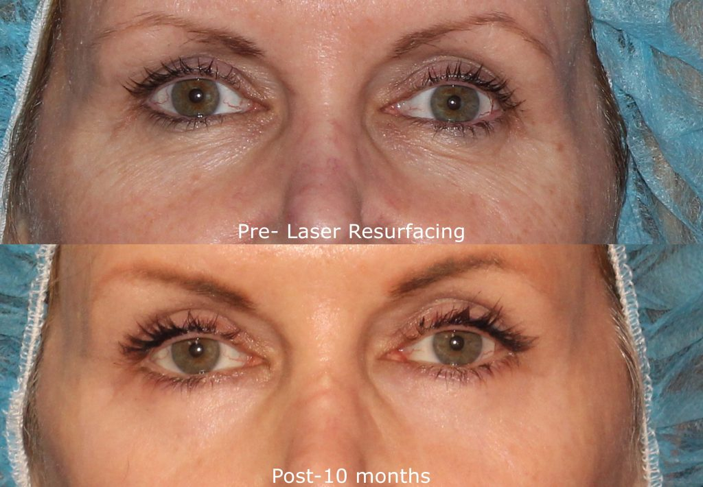 Actual un-retouched patient before and after laser resurfacing to treat the area around the eyes by Dr. Fabi. Disclaimer: Results may vary from patient to patient. Results are not guaranteed.