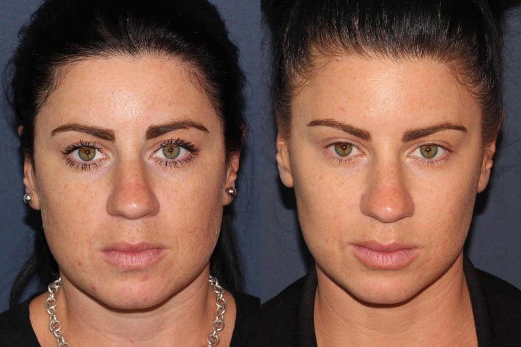 Actual un-retouched patient before and after Botox treatment for masseter reduction by Dr. Fabi. Disclaimer: Results may vary from patient to patient. Results are not guaranteed.