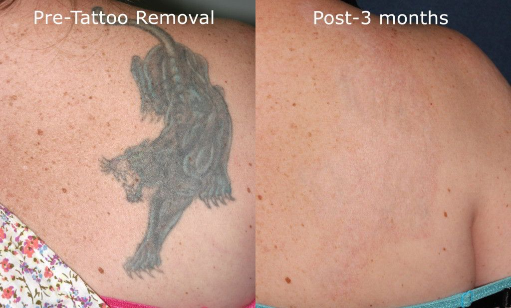 Picosure Tattoo Removal San Diego, CA | Cosmetic Laser Dermatology