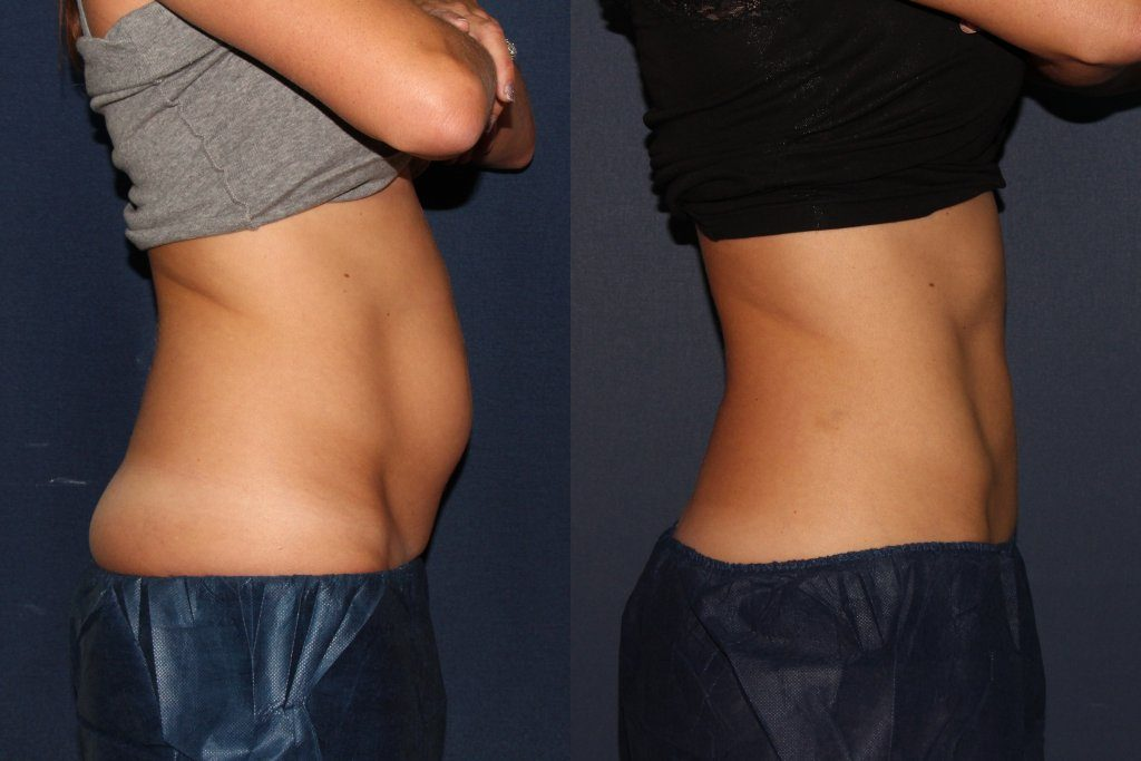 Actual un-retouched patient before and after Coolsculpting to reduce fat in the abdomen and flanks by Dr. Groff. Disclaimer: Results may vary from patient to patient. Results are not guaranteed.