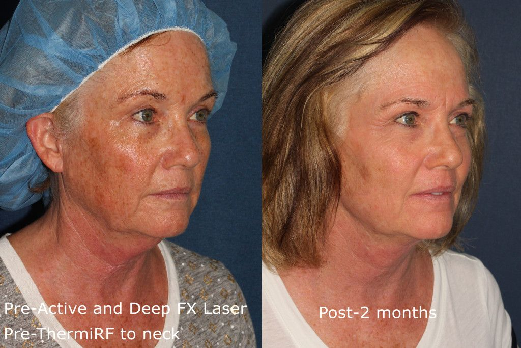 facial for resurfacing time Heal