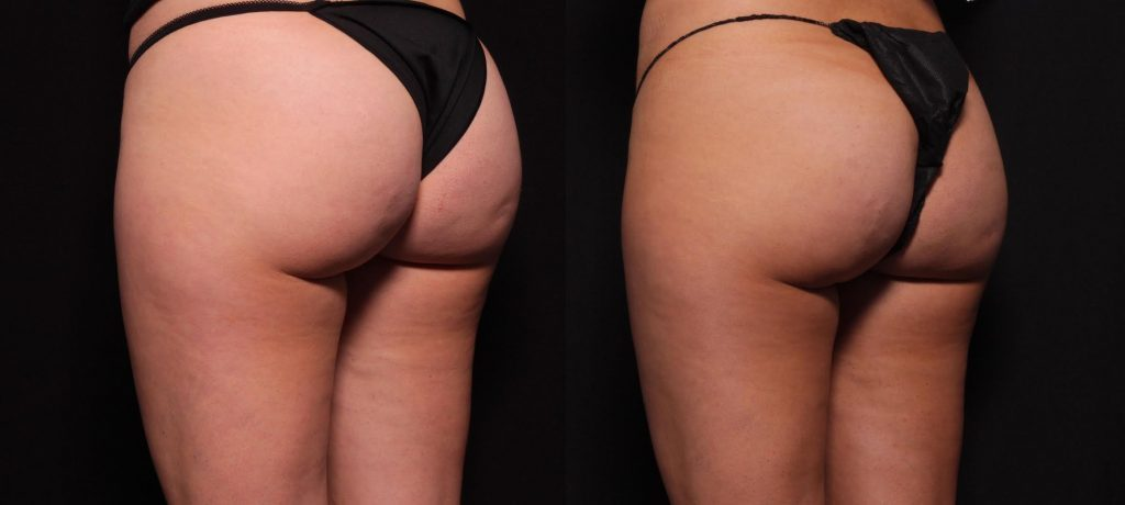 Actual un-retouched patient before and after Cellfina to reduce cellulite on the buttocks and thighs by Dr. Fabi. Disclaimer: Results may vary from patient to patient. Results are not guaranteed.