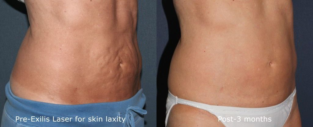 Actual un-retouched patient before and after Exilis treatment for skin laxity by Dr. Goldman. Disclaimer: Results may vary from patient to patient. Results are not guaranteed.