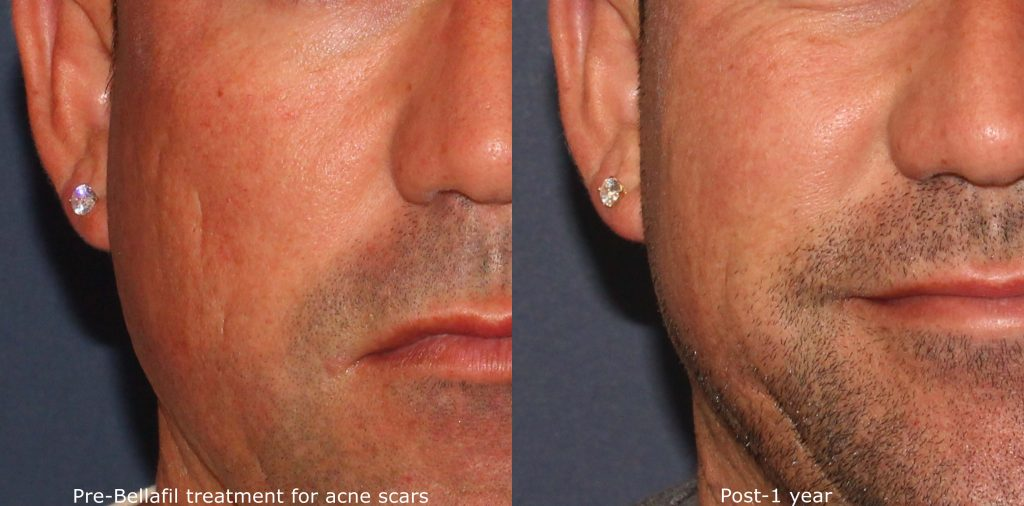 Actual unretouched patient before and after Bellafill injections to treat acne scars by Dr. Wu. Disclaimer: Results may vary from patient to patient. Results are not guaranteed.