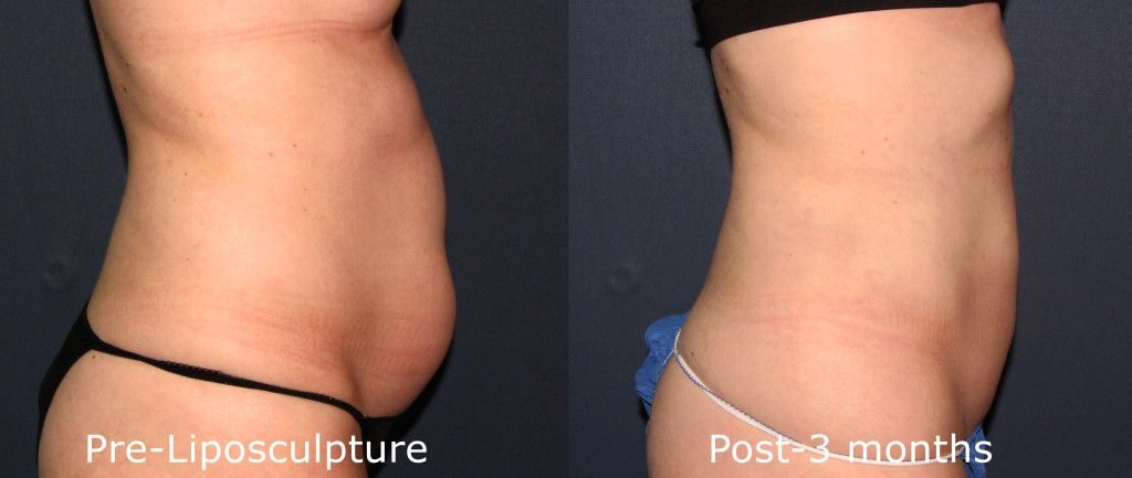 Actual un-retouched patient before and after liposculpture to reduce abdominal fat by Dr. Butterwick. Disclaimer: Results may vary from patient to patient. Results are not guaranteed.