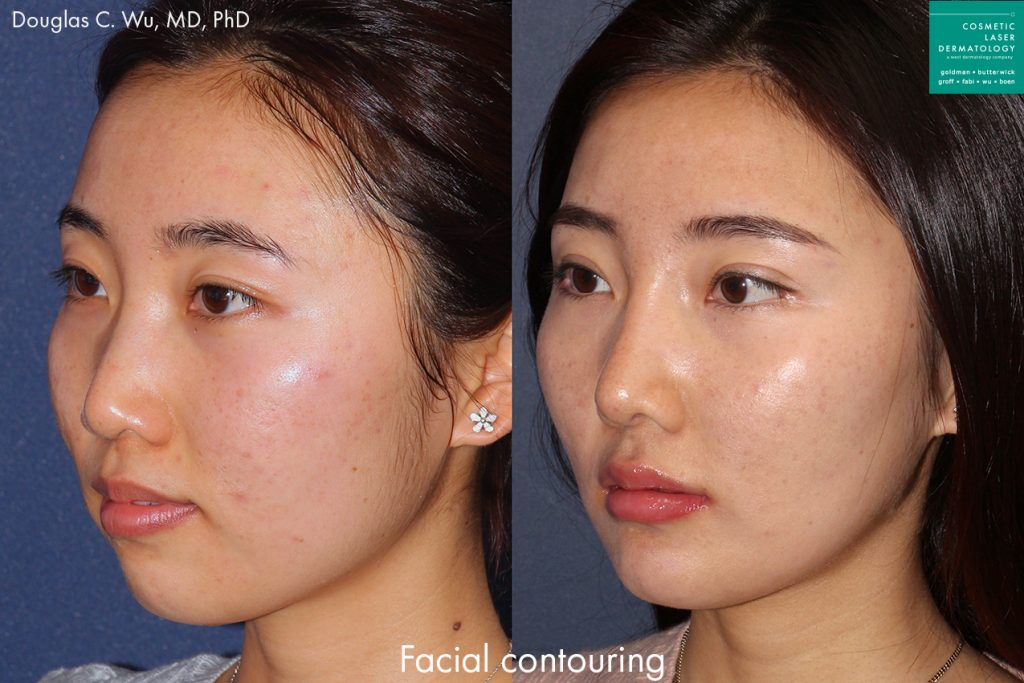 Botox and dermal fillers for facial contouring by Dr. Wu. Disclaimer: Results may vary from patient to patient. Results are not guaranteed.