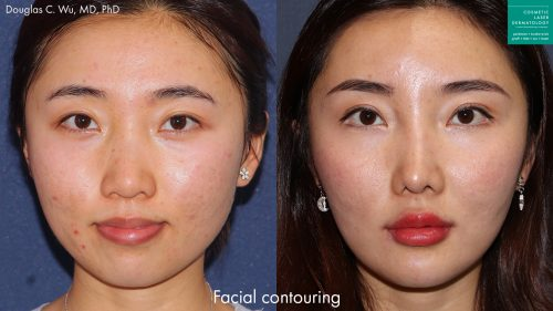 Botox and dermal fillers to contour the face by Dr. Wu. Treatment creates more narrow jawline and improves facial contour.