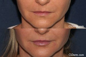 Dermal Filler Injection to the Lips Results in San Diego, CA