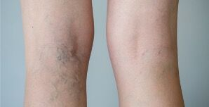 CoolTouch Varicose Vein Treatment Del mar