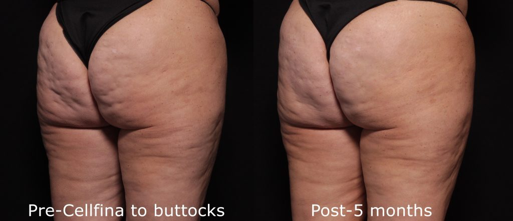 Actual un-retouched patient before and after Cellfina treatment to reduce cellulite on the buttocks and thighs by Dr. Fabi. Disclaimer: Results may vary from patient to patient. Results are not guaranteed.