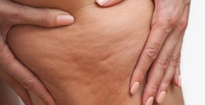 Cellulite treatment in San Diego, CA