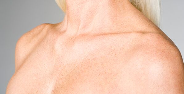 chest wrinkle removal san diego