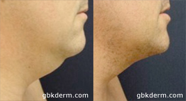 Before and after side image of CoolLipo treatment on a male's chin and neck performed by Dr. Wu at our San Diego medical spa