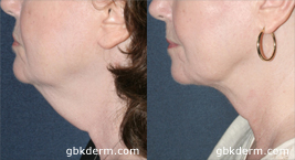 Before and after side image of CoolLipo treatment on a female's chin and neck performed by Dr. Fabi at our San Diego medical spa