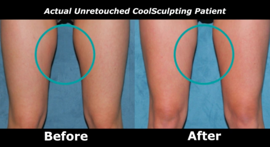 Actual un-retouched patient before and after Coolsculpting treatment for thighs by Dr. Fabi. Disclaimer: Results may vary from patient to patient. Results are not guaranteed.