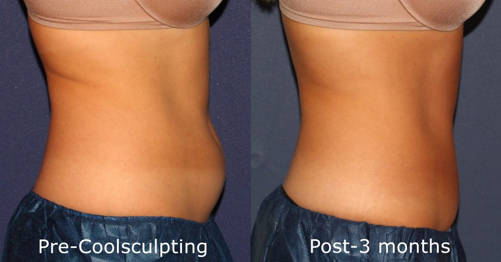 Actual un-retouched patient before and after Coolsculpting for abdominal reduction and sculpting by Dr. Fabi. Disclaimer: Results may vary from patient to patient. Results are not guaranteed.
