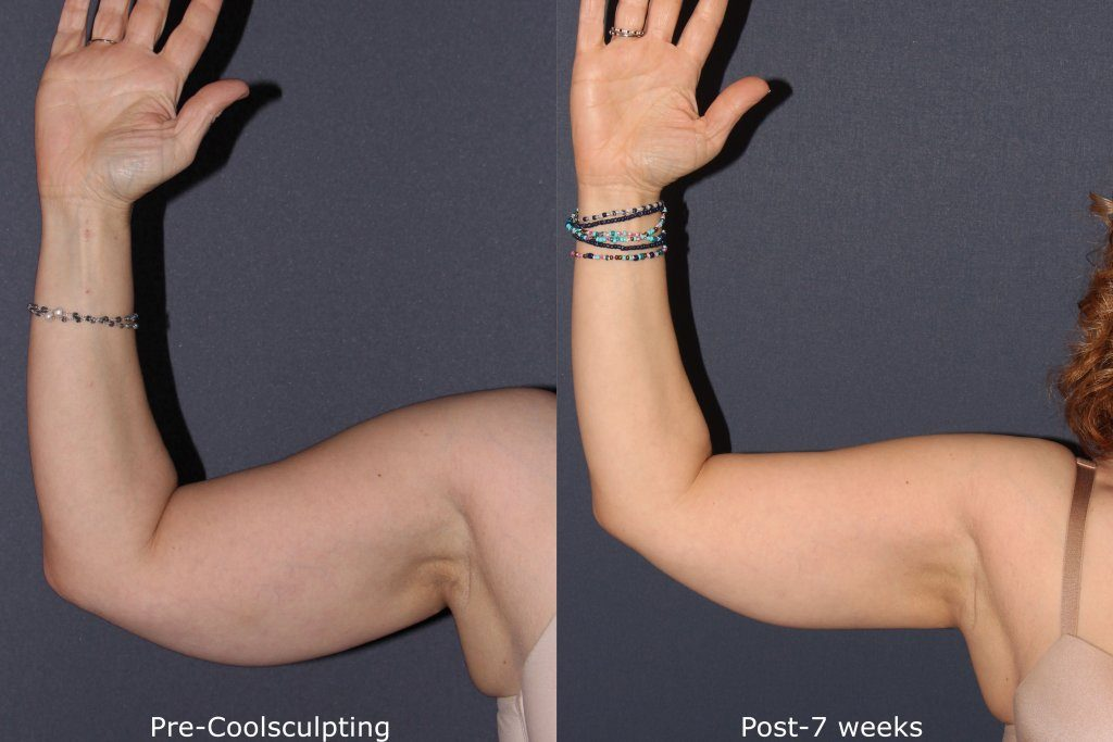 Actual un-retouched patient before and after Coolsculpting to contour the upper arms by Dr. Goldman. Disclaimer: Results may vary from patient to patient. Results are not guaranteed.