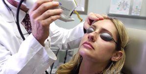 Laser Facial Vein Treatment La Jolla