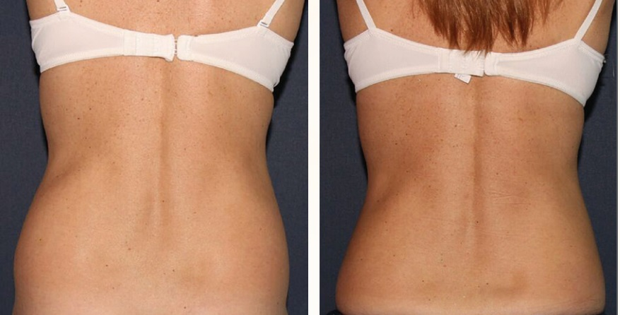 Actual un-retouched patient before and after Coolsculpting to reduce fat in the lower back and flanks by Dr. Fabi. Disclaimer: Results may vary from patient to patient. Results are not guaranteed.