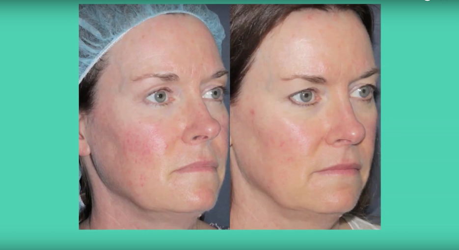 Actual un-retouched patient before and after IPL photofacial treatment for facial redness by Dr. Fabi. Disclaimer: Results may vary from patient to patient. Results are not guaranteed.
