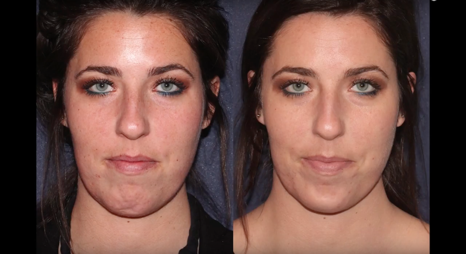 Actual un-retouched patient before and after IPL photofacial treatment for facial rejuvenation by Dr. Wu. Disclaimer: Results may vary from patient to patient. Results are not guaranteed.