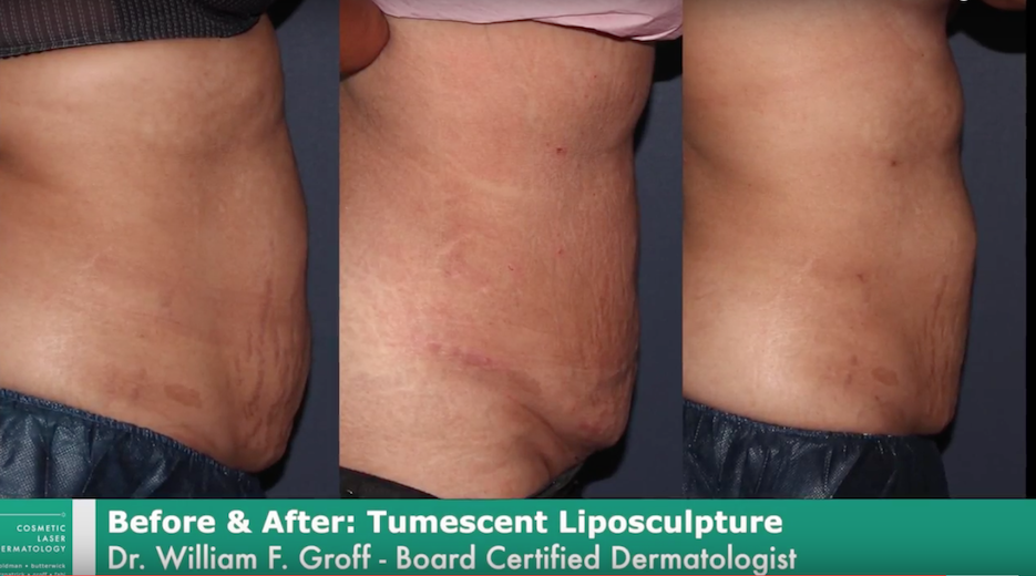 Actual un-retouched patient before and after liposuction treatment for removal of excess abdominal fat by Dr. Groff. Disclaimer: Results may vary from patient to patient. Results are not guaranteed.