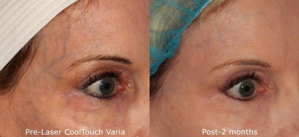 Actual un-retouched patient before and after CoolTouch Varia treatment for veins around the eyes by Dr. Fabi. Disclaimer: Results may vary from patient to patient. Results are not guaranteed.