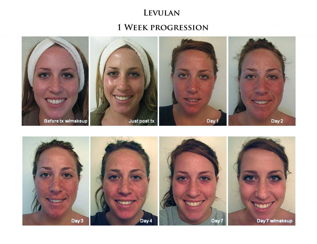 See day by day a typical healing process from a Levulan Photodynamic Therapy (PDT) procedure.