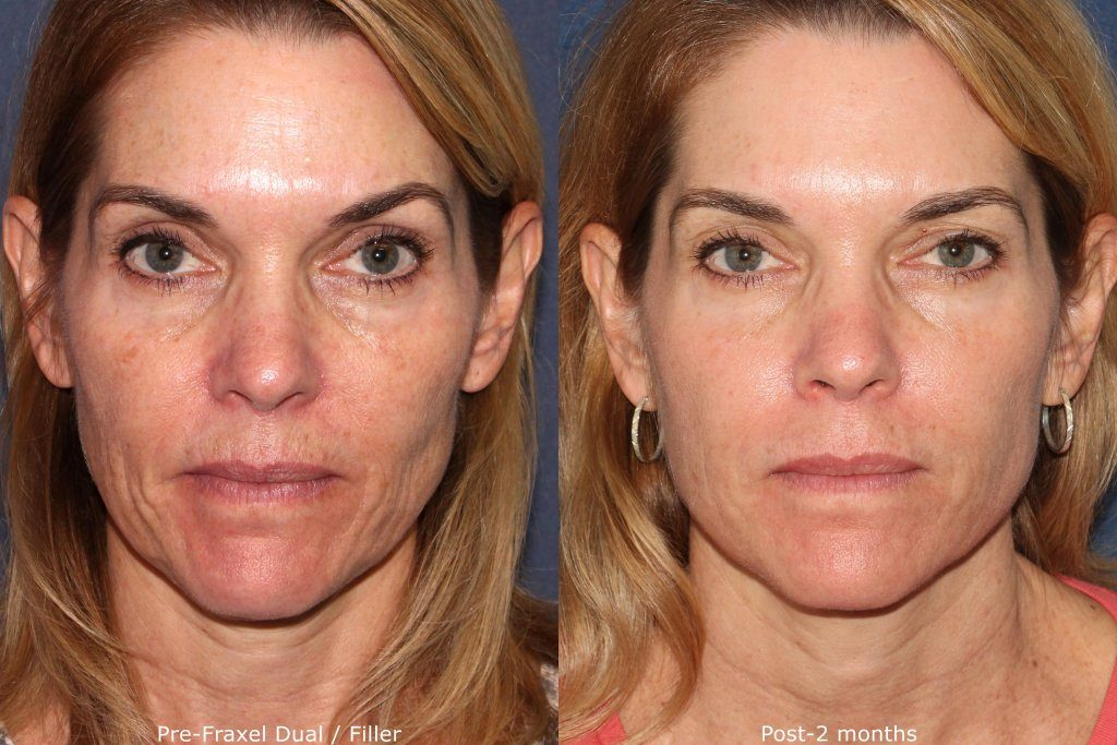 Actual un-retouched patient before and after Fraxel Dual laser and filler treatment for sun damage and wrinkles by Dr. Wu. Disclaimer: Results may vary from patient to patient. Results are not guaranteed.