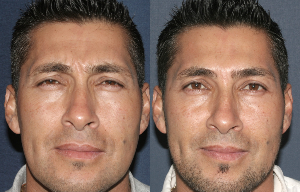 Injectables San Diego, CA   Cosmetic Laser Dermatology