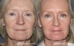 Before and After of Fractional Resurfacing in San Diego, CA