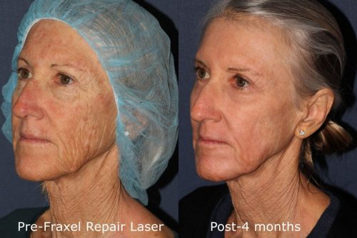 laser resurfacing anti aging treatment la jolla