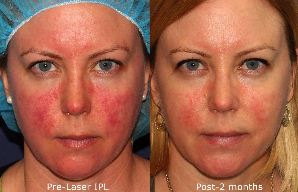 Actual un-retouched patient before and after IPL photofacial to treat rosacea symptoms by Dr. Goldman. Disclaimer: Results may vary from patient to patient. Results are not guaranteed.