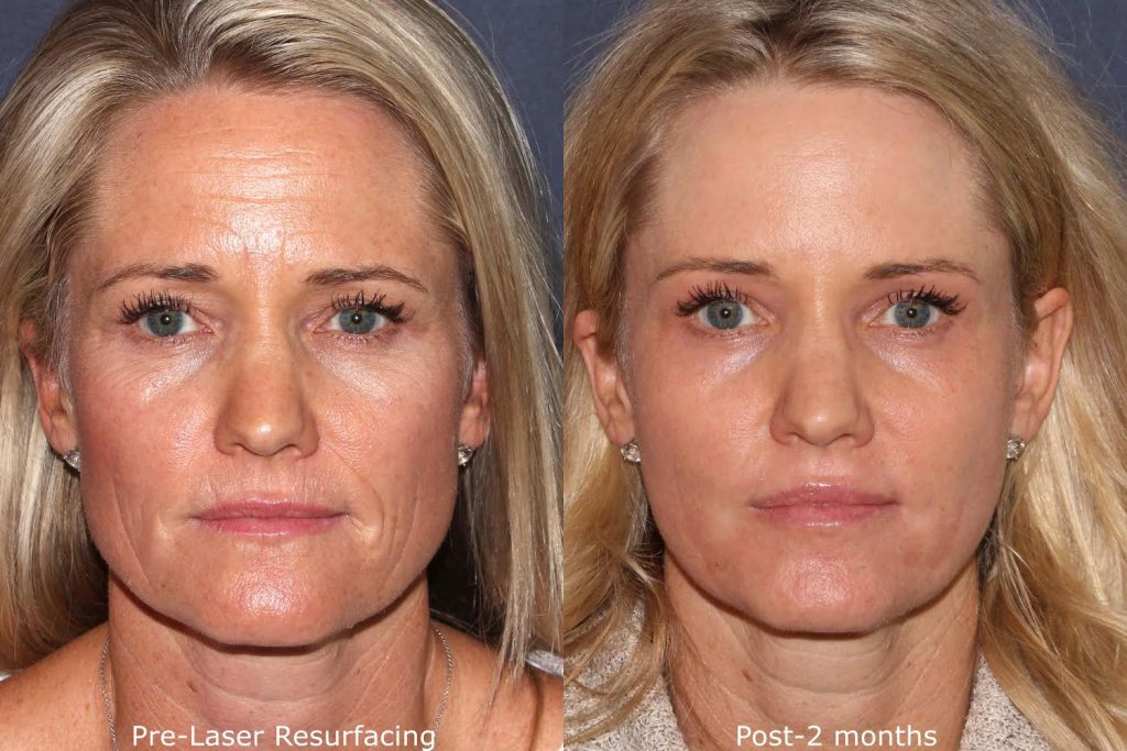 Actual un-retouched patient before and after laser resurfacing to rejuvenate the skin by Dr. Groff. Disclaimer: Results may vary from patient to patient. Results are not guaranteed.