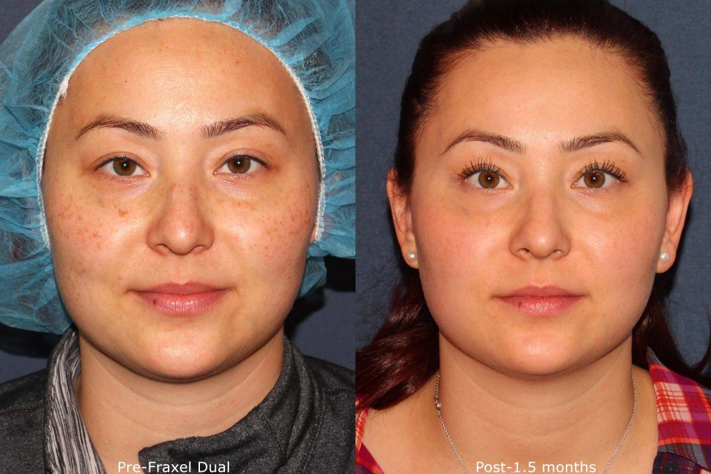 Actual un-retouched patient before and after Fraxel laser to treat sun damage and pigmentation by Dr. Groff. Disclaimer: Results may vary from patient to patient. Results are not guaranteed.