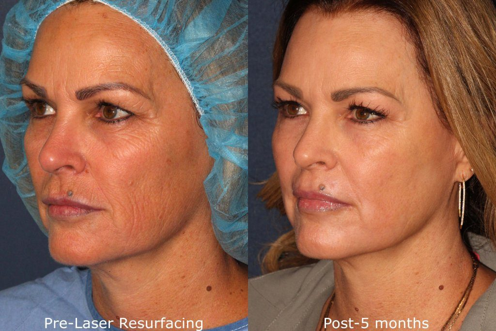 Actual un-retouched patient before and after laser resurfacing treatment to rejuvenate the skin by Dr. Groff. Disclaimer: Results may vary from patient to patient. Results are not guaranteed.