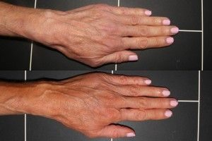 Hand rejuvenation results at cosmetic laser dermatology
